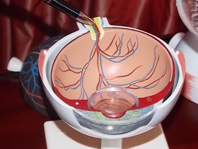 seid avastin therapie leichte blutungen